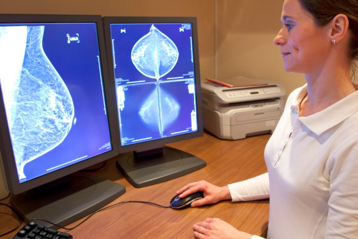 Análisis de mamograf�as.