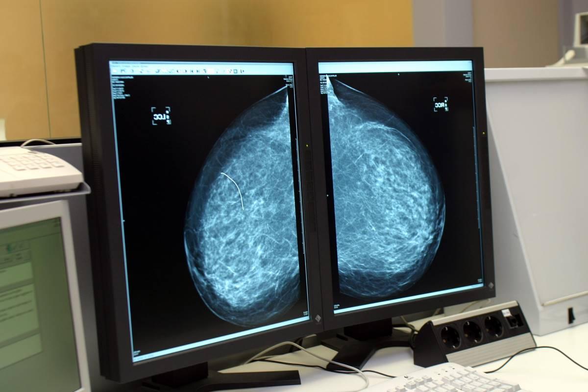 Imagen de una mamografía en el ordenador.