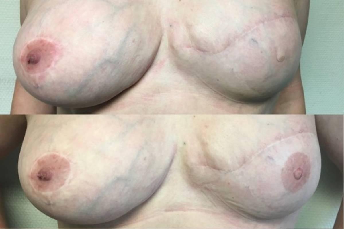 Antes y después de la micropigmentación de la areola y pezón.