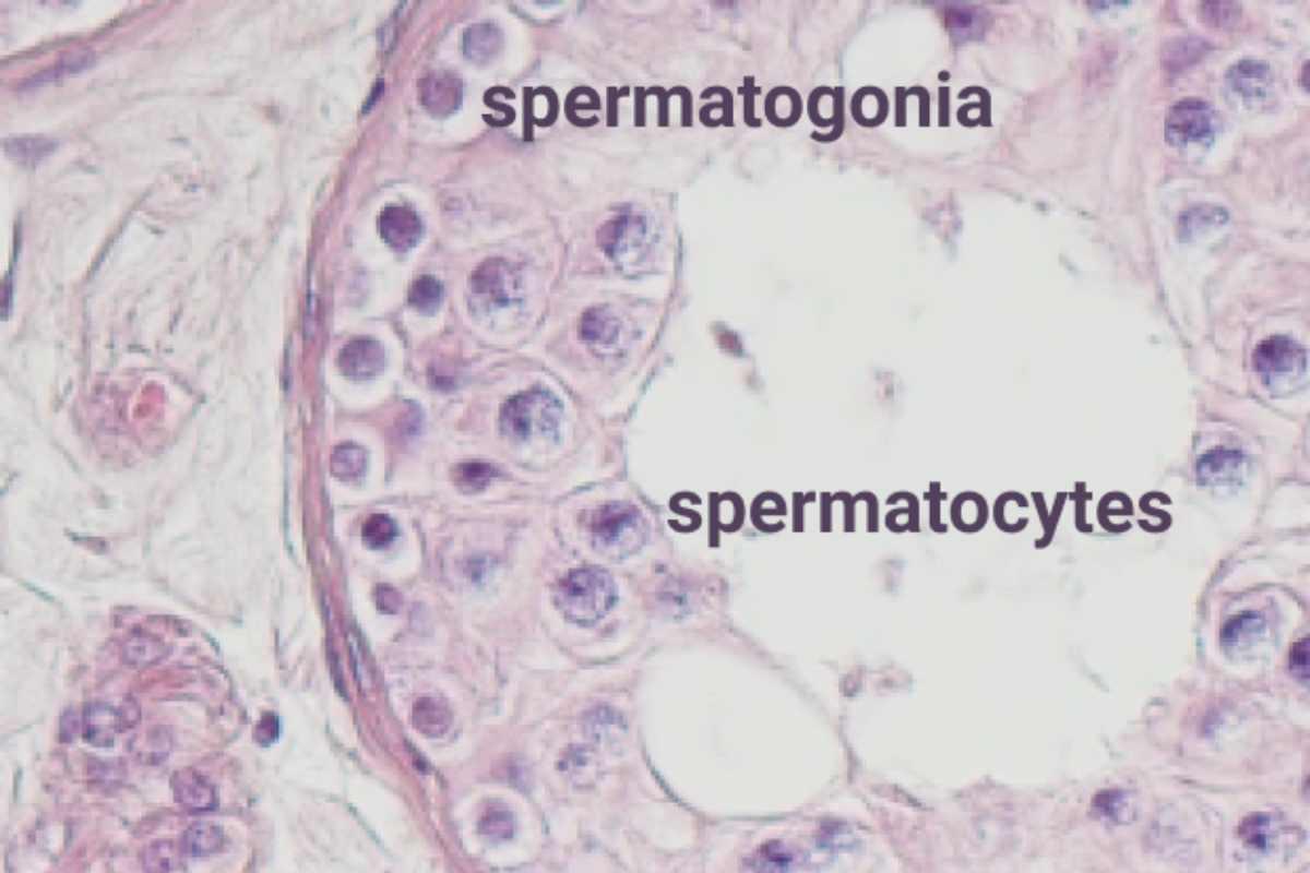 Imagen de la no producción de espermatozoides por bloqueo de meiosis en la azoospermia no obstructiva.