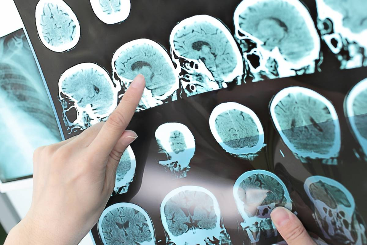Ofatumumab ha sido autorizado como 'Kesimpta' en formas recurrentes de esclerosis múltiple.