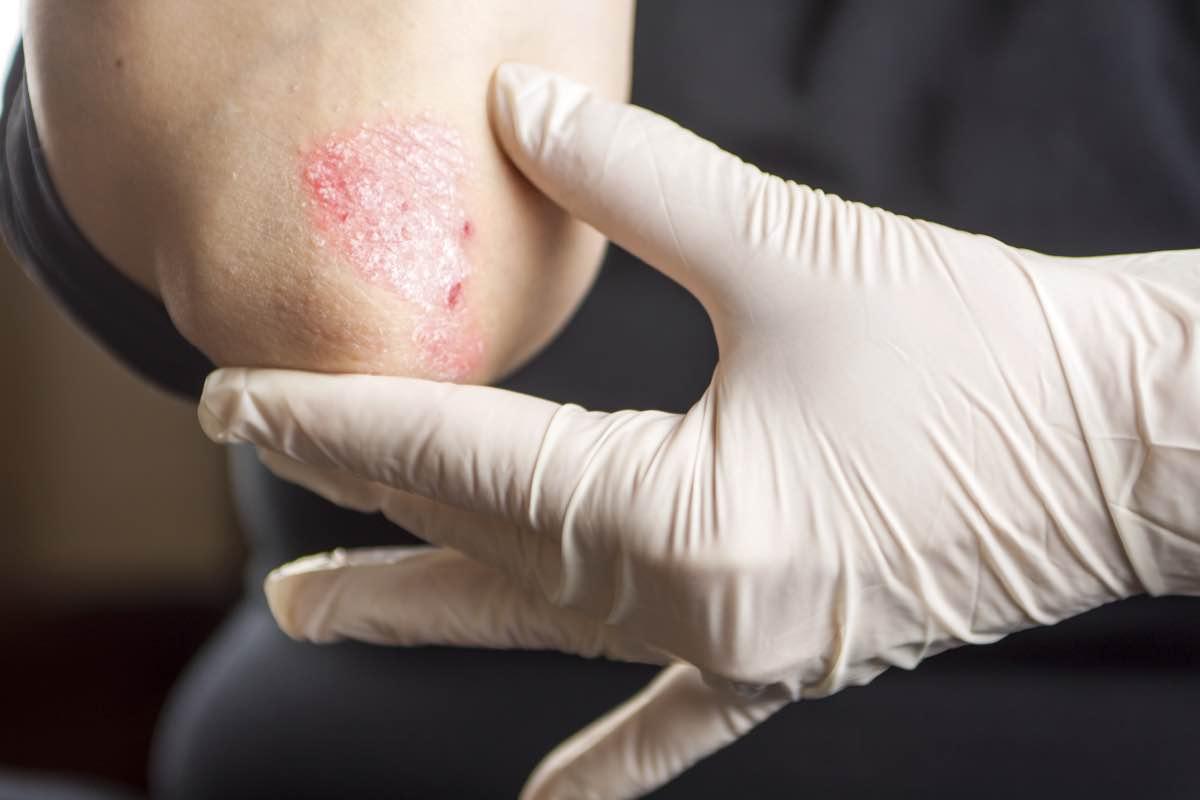 Uno de cada cuatro pacientes diagnosticados con psoriasis no es tratado por un dermatólogo.