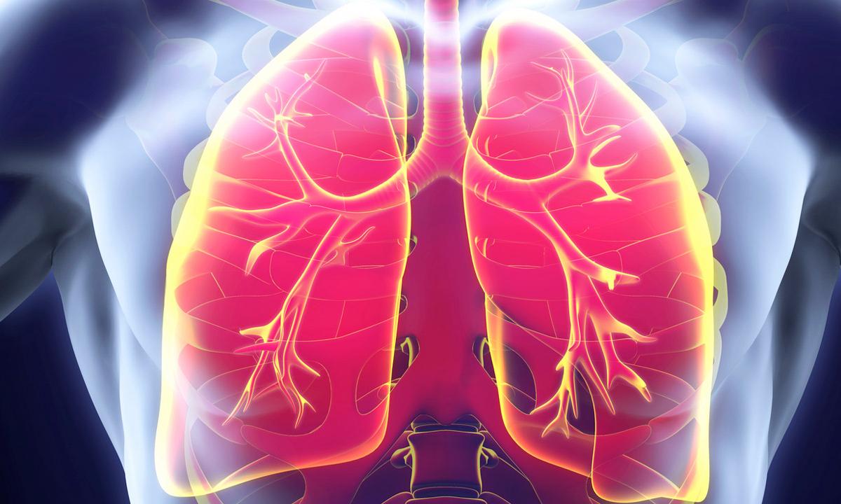 La autorización está respaldada por los resultados de dos estudios internacionales de fase 3 que mostraron mejorías estadística y clínicamente significativas en la función pulmonar.