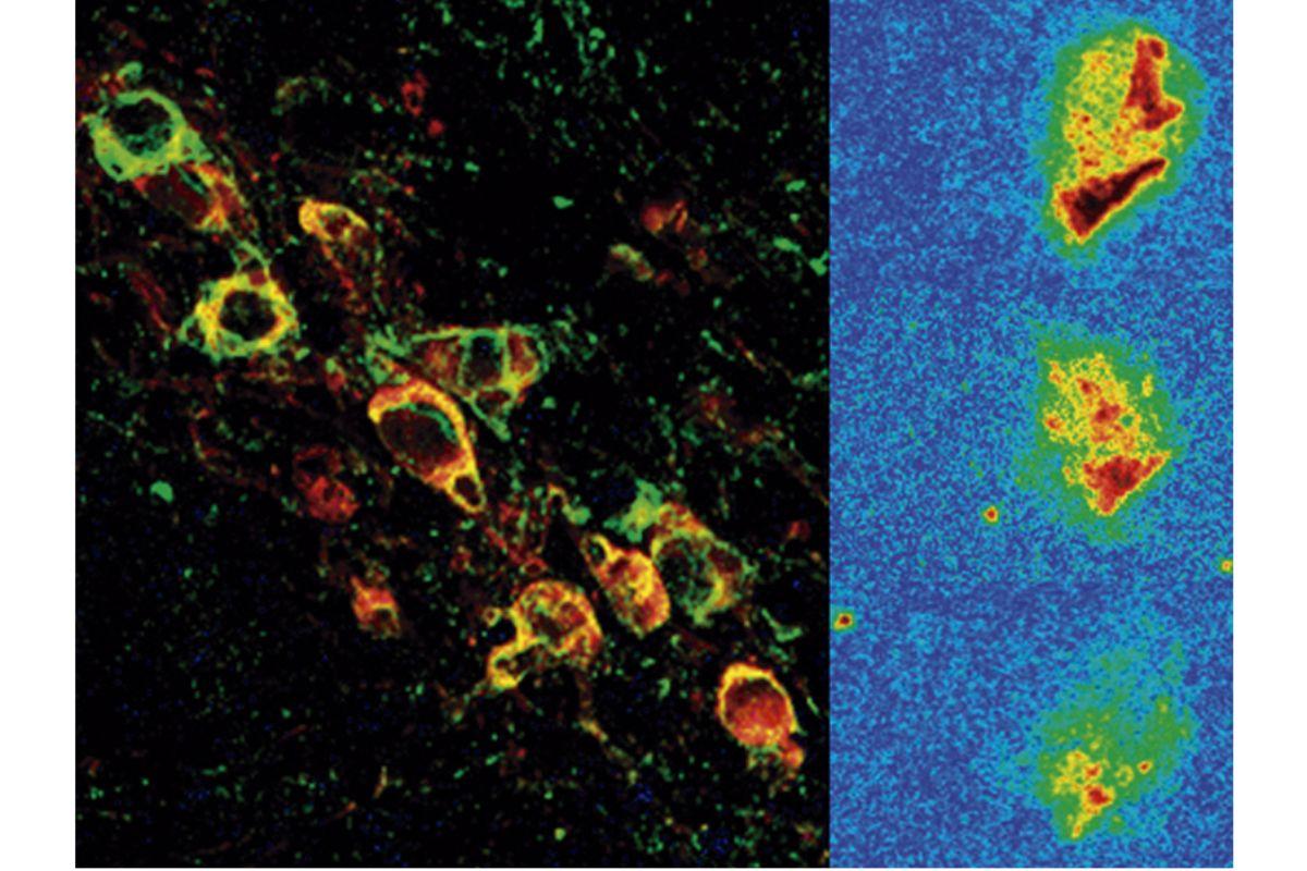 Neuronas dopaminérgicas expresando la forma humana de alfa-sinucleína vistas por microscopia confocal (izquierda) y reducción progresiva de la expresión de alfa-sinucleína después del tratamiento (derecha).Neuronas dopaminérgicas expresando la forma humana de alfa-sinucleína vistas por microscopia confocal (izquierda) y reducción progresiva de la expresión de alfa-sinucleína después del tratamiento (derecha).