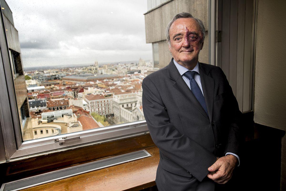 El grupo de Mariano Barbacid, del Centro Nacional de Investigaciones Oncológicas (CNIO), de Madrid, ha conseguido un nuevo abordaje para cáncer de pulmón.
