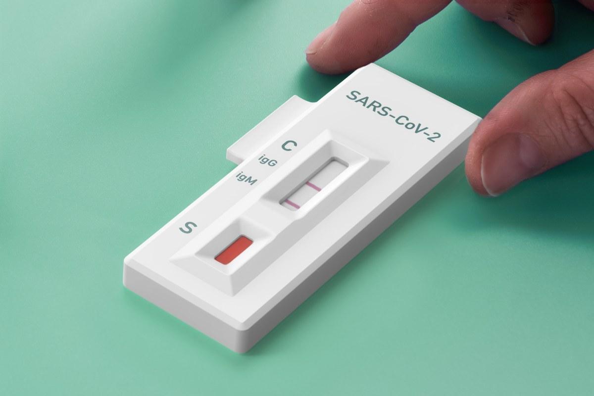 Test de anticuerpos para SARS-CoV-2.