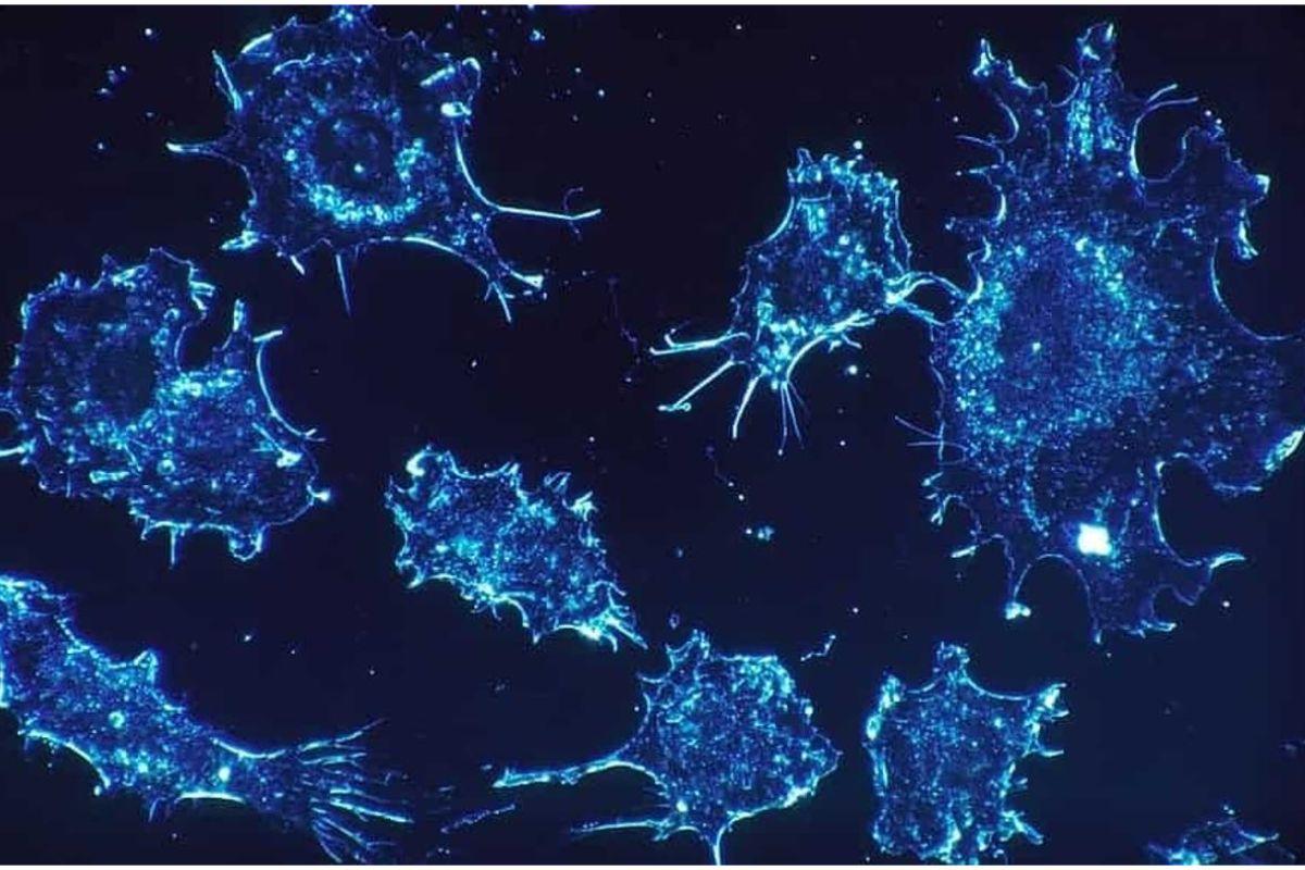 Células de cáncer de ovario.