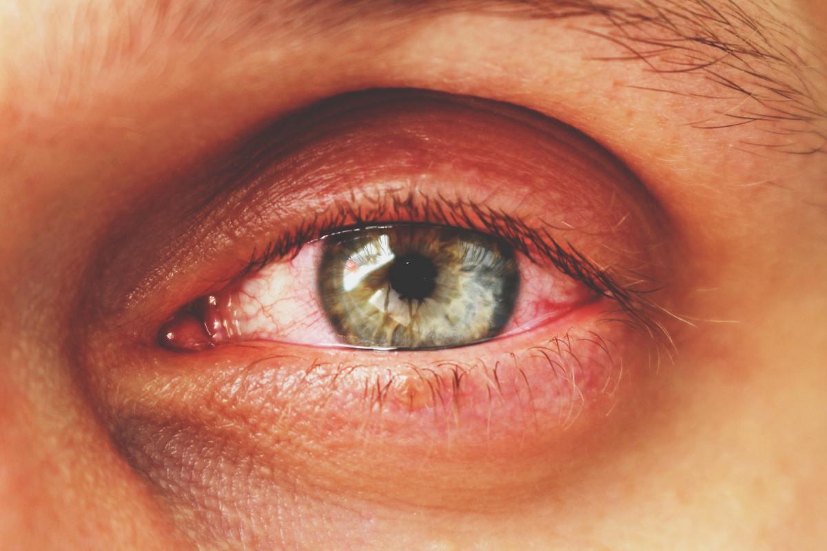 En primavera y otoño se incrementan en las farmacias los consejos relacionados tanto con conjuntivitis alérgica como infecciosa.