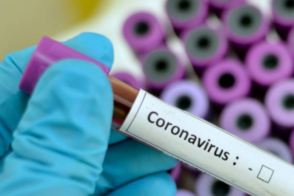 prueba de coronavirus