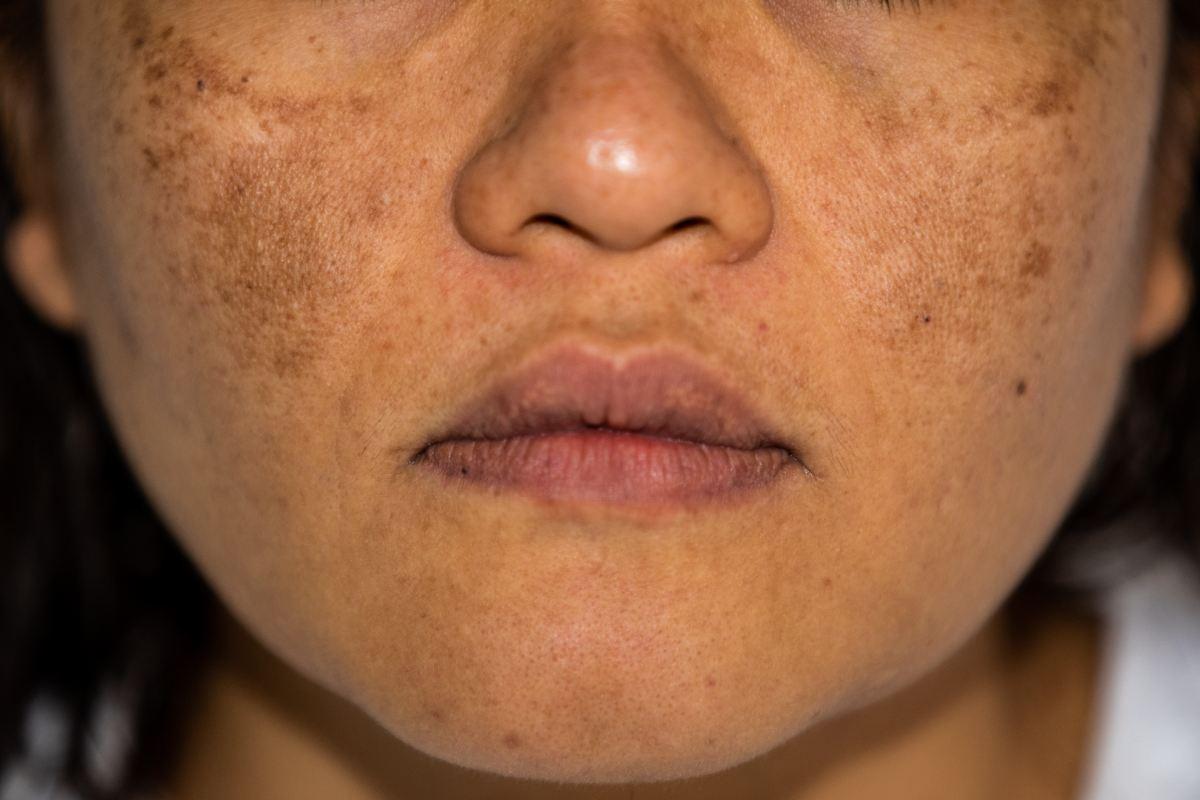 Los pacientes con hiperpigmentación deben evitar la aplicación de cosméticos que puedan provocar fotosensibilidad.