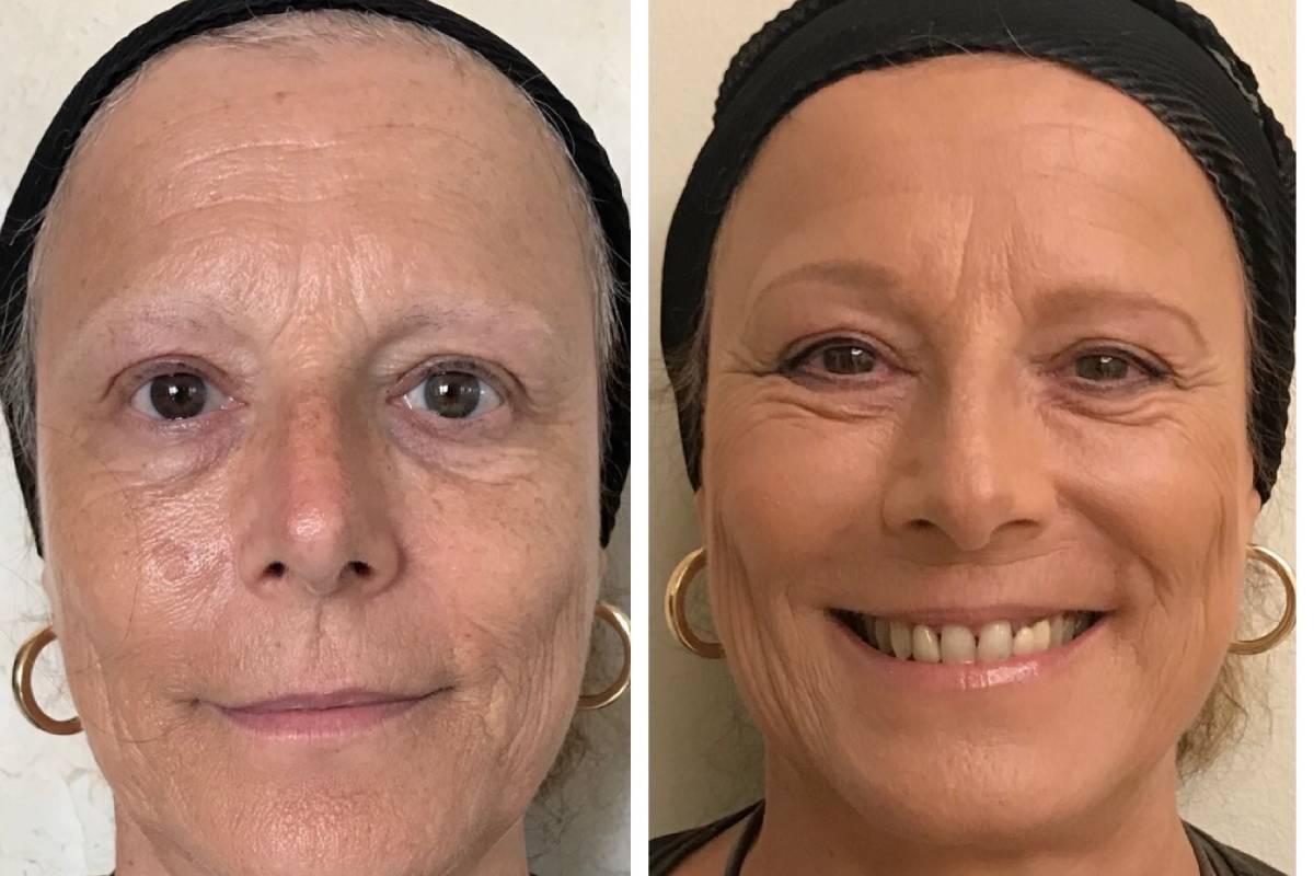 Paciente con cáncer antes y después de ser maquillada.