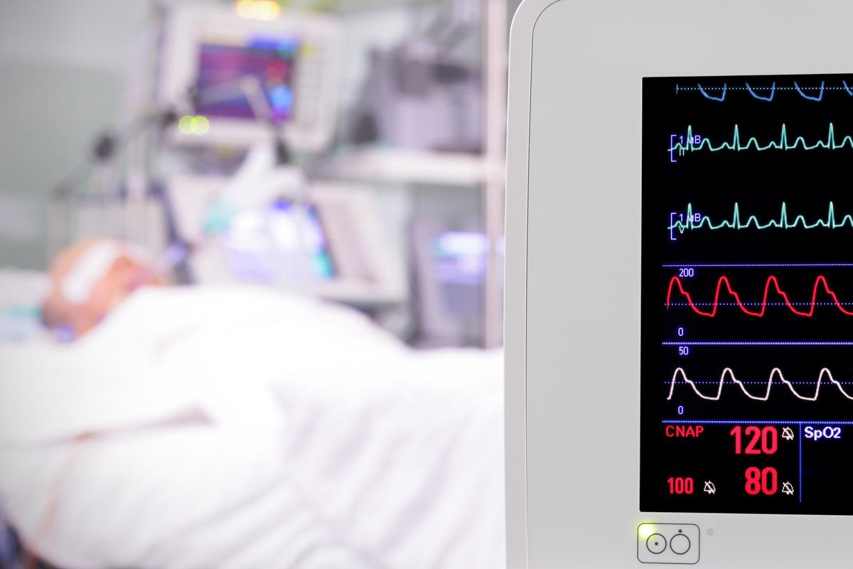 Monitor de un paciente con UCI.