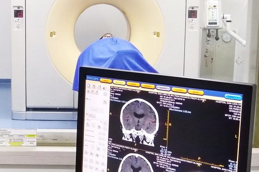 TAC tomograf�a computarizada