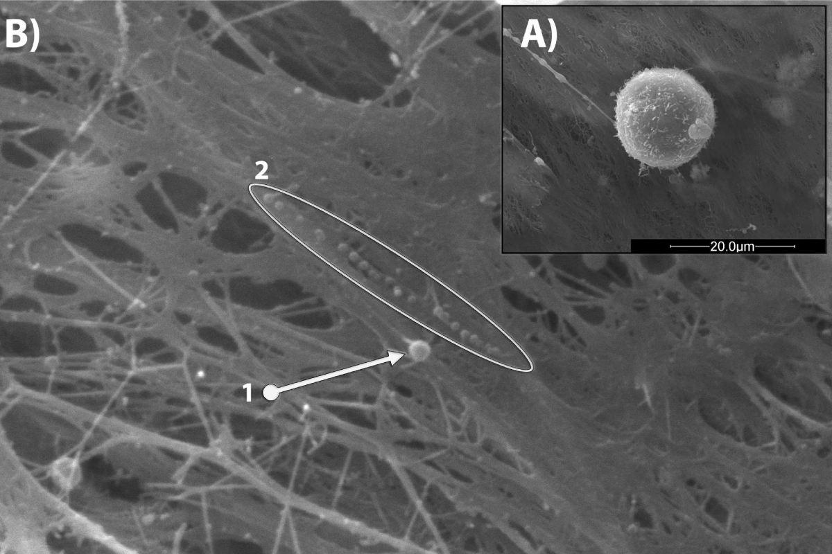Imágenes SEM de unas célula madres mesenquimales en cultivo e imágenes de microvesícula (diámetro 460 nm) y  el conjunto de exosomas (diámetro medio 140nm) secretados por las células MSCs.