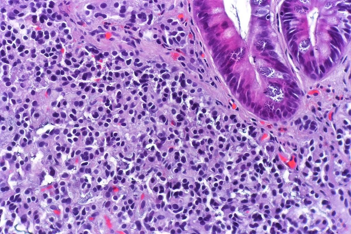 Histopatología de un tumor neuroendocrino.