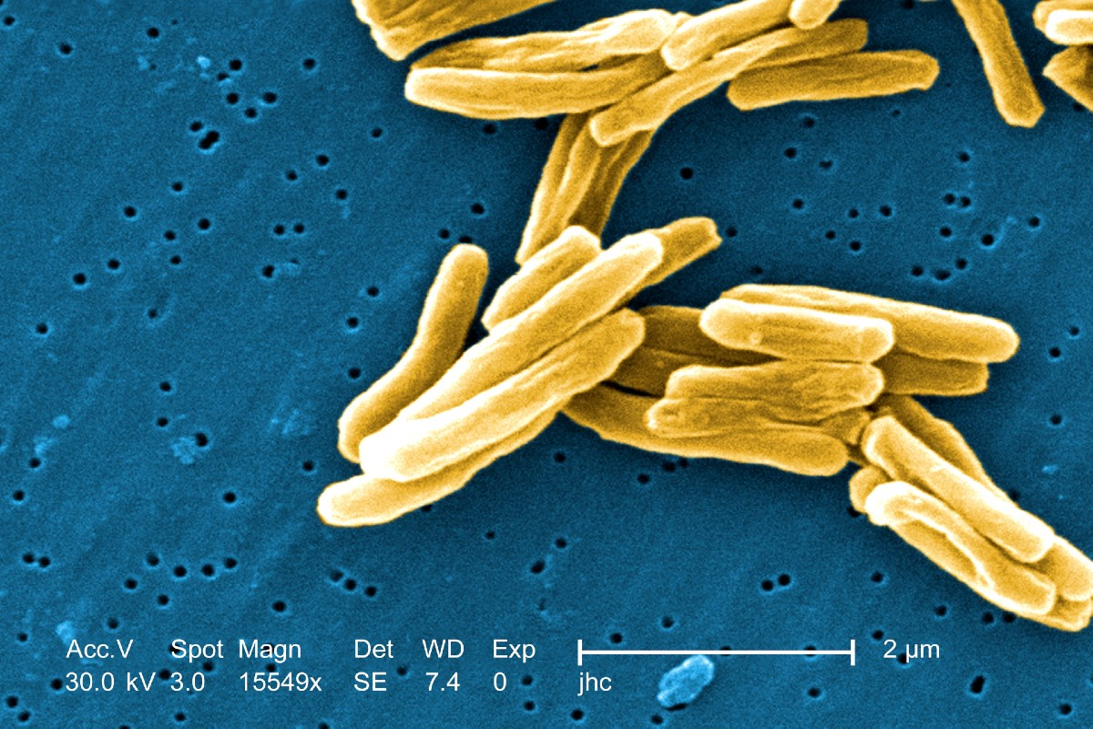 Bacilos tuberculosis