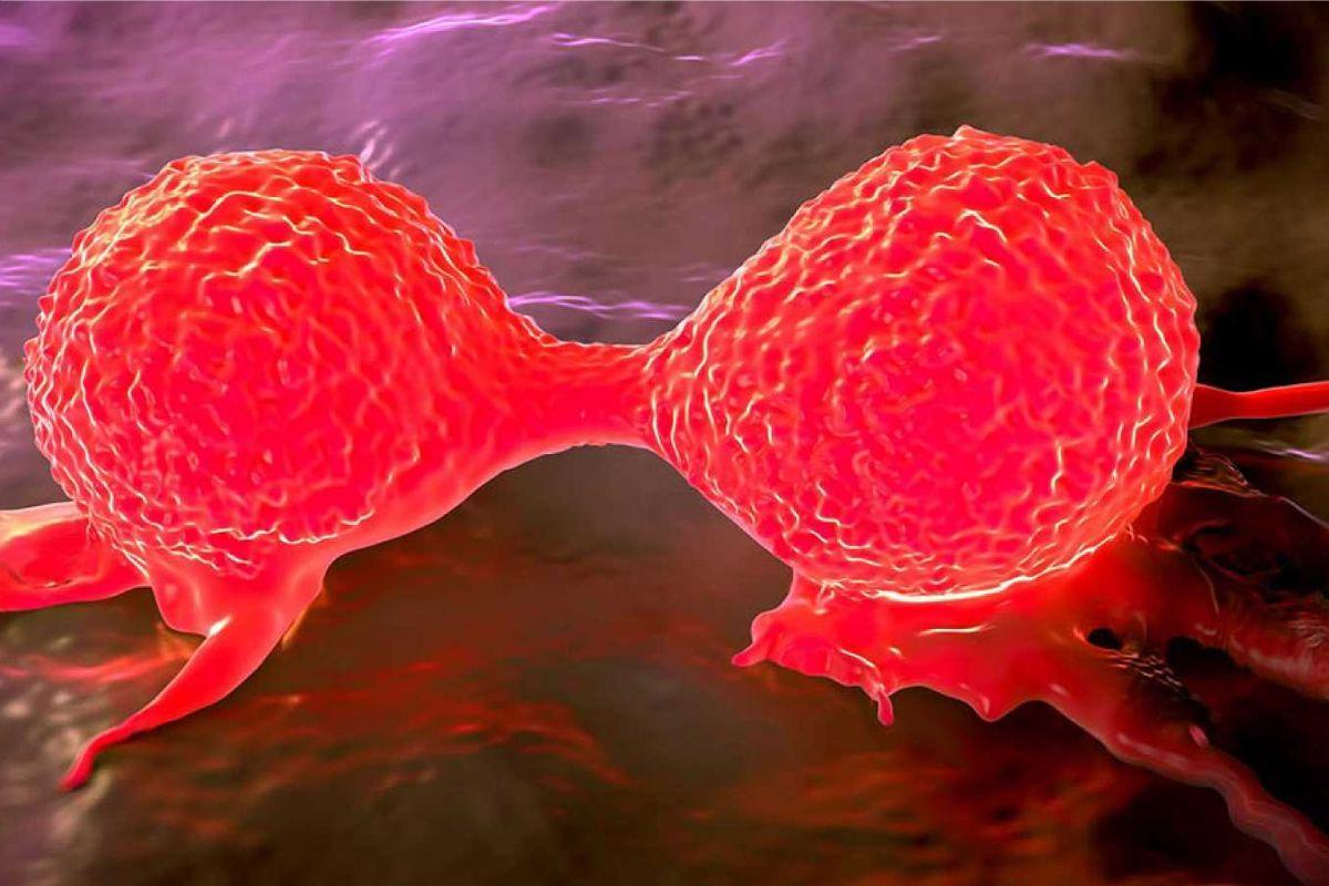 Células de cáncer de mama.