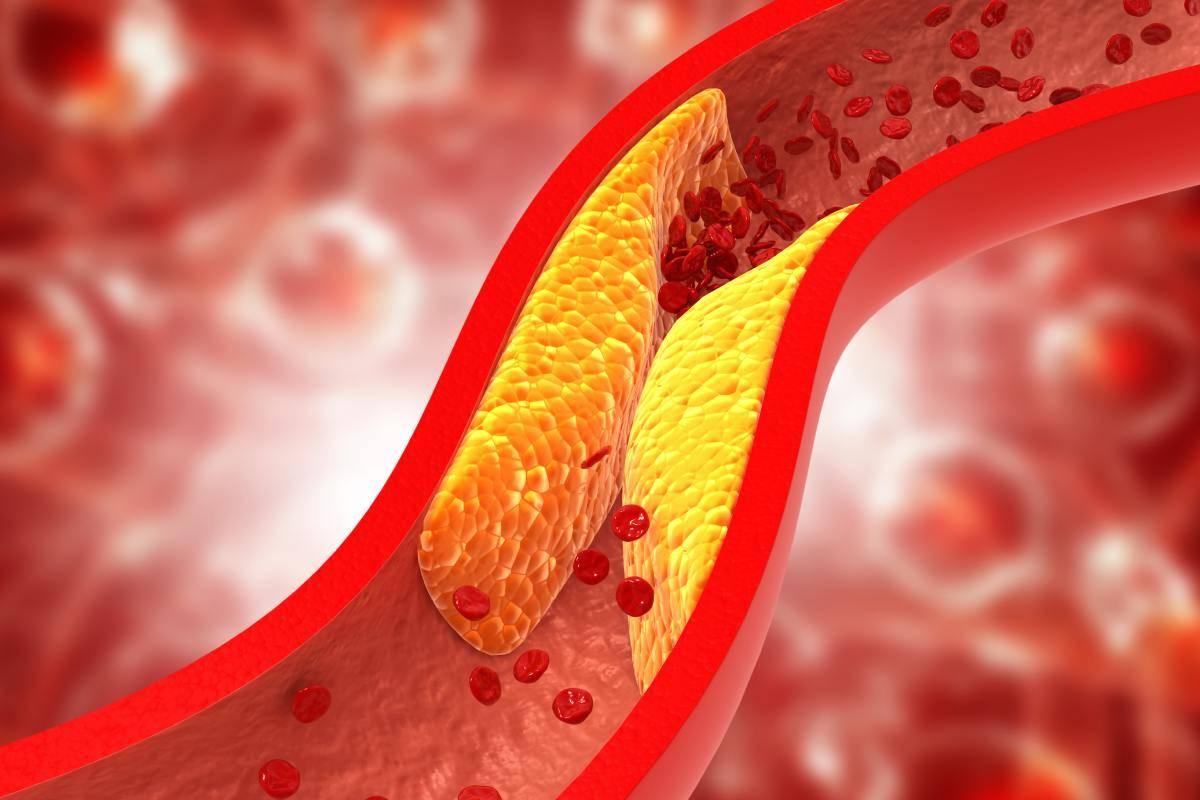 La exposición a largo plazo a c-LDL elevado aumenta el riesgo de aterosclerosis.