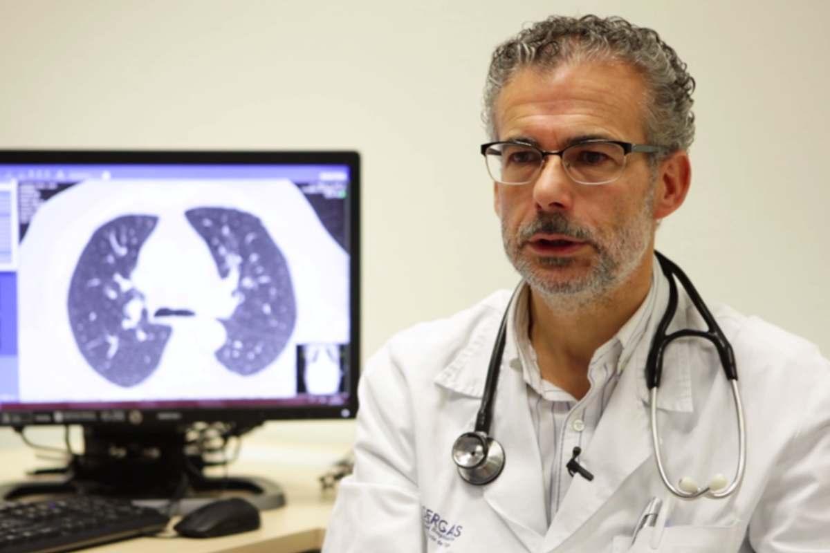 Alberto Fernández Villar, jefe del Servicio de Neumolog�a del Hospital Álvaro Cunqueiro de Vigo