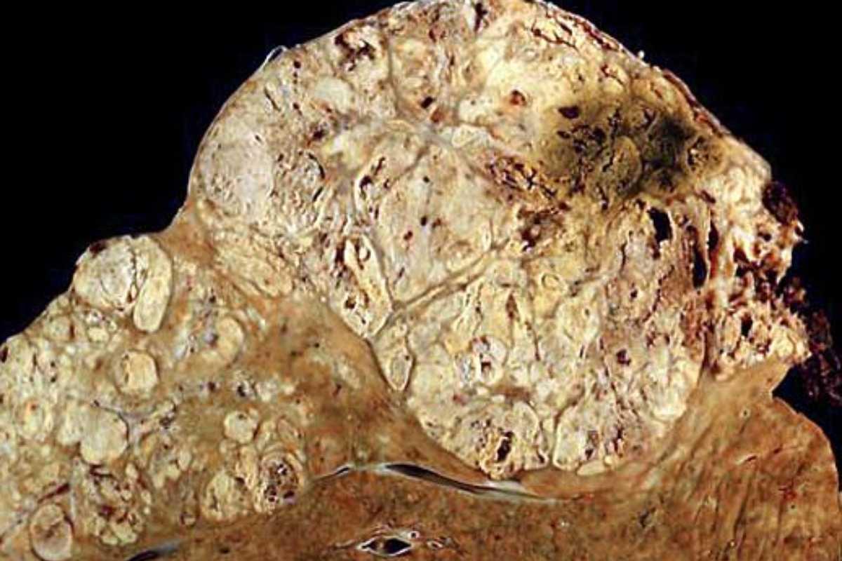 Hepatocarcinoma derivado de una cirrosis por hepatitis C.