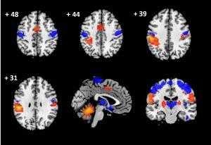 La neuroimagen evidencia daños en el cerebro de pacientes con lesiones cervicales.
