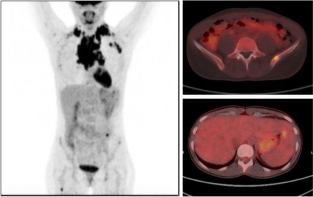 datos epidemiológicos sicily cancer de próstata modelo 2020