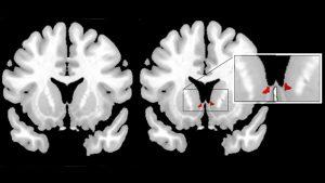 A la izquierda, imagen cerebral sin activación en comparación con la imagen de la derecha en la que se visualiza, con resonancia magnética, como se activa el estriado ventral (encargado del placer, el refuerzo y la motivación) en el cerebro de una madre cuando ve fotos de su bebé.