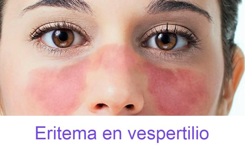 vespertilio