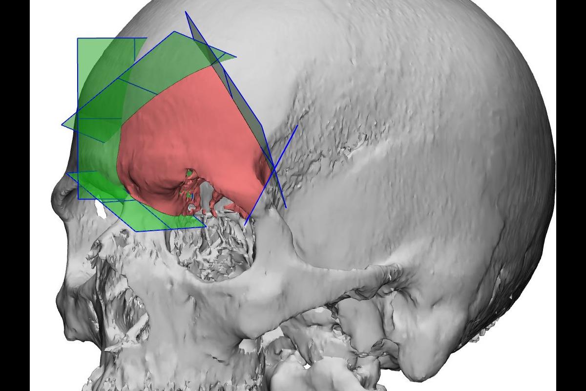 Tumor craneal operado en HM Delfos