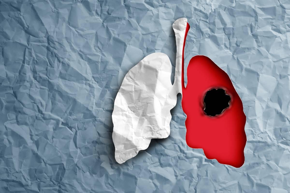 Cáncer de pulmón