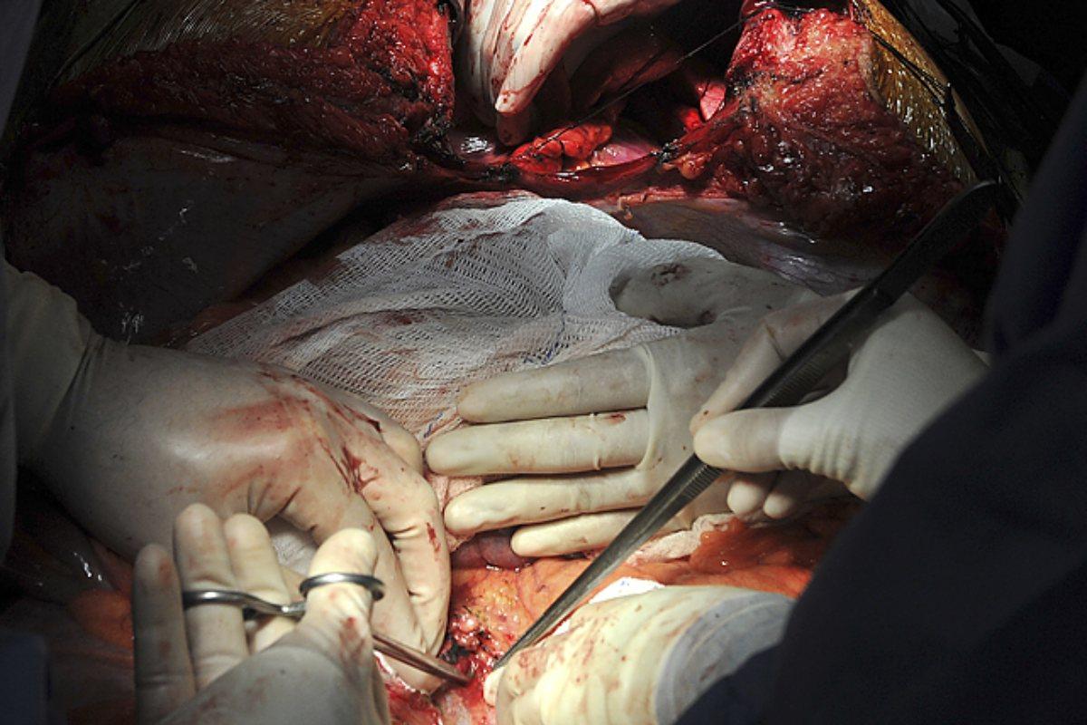 Un momento del procedimiento de donación de órganos.