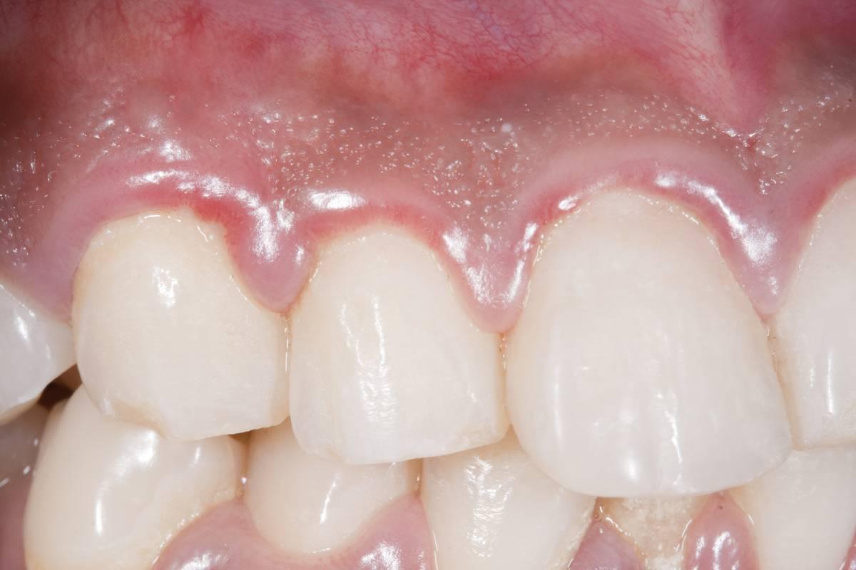 Los pacientes con periodontitis tienen casi 9 veces más posibilidades de morir en caso de tener covid.