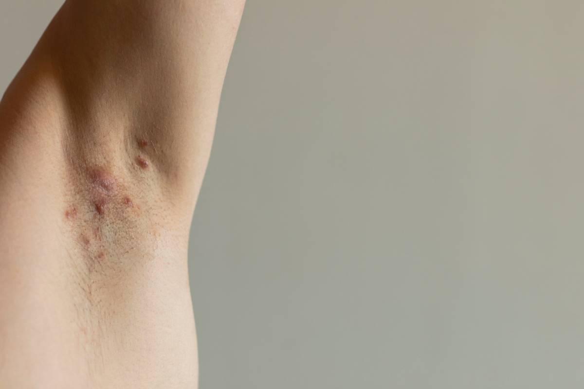 La hidrosadenitis supurativa se manifiesta en forma de nódulos inflamados recurrentes dolorosos que evolucionan hacia la formación de abscesos y supuración de pus.
