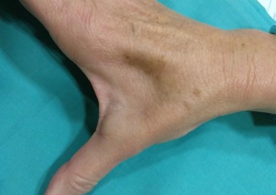 En la imagen se aprecia una atrofia del músculo primer interóseo dorsal, correspondiente al nervio cubital.