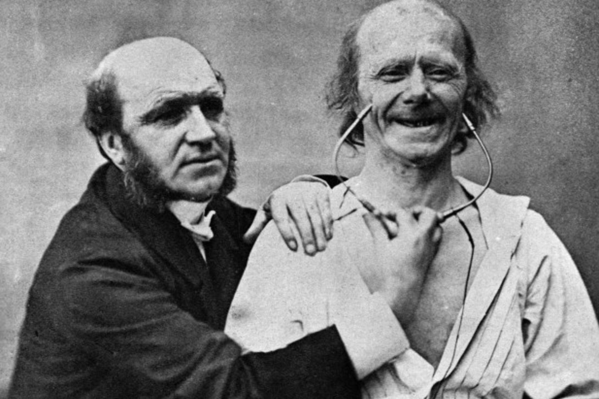 Guillaume Duchenne, con uno de sus pacientes.