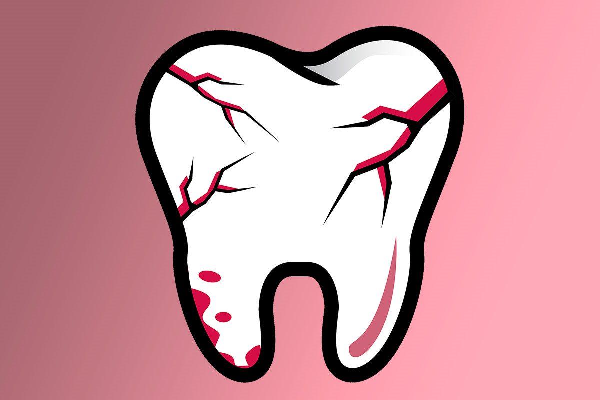 El dolor dental por caries se muestra como el más habitual o reconocible, aunque el producido por fractura, sobre todo vertical, también suele ser frecuente.