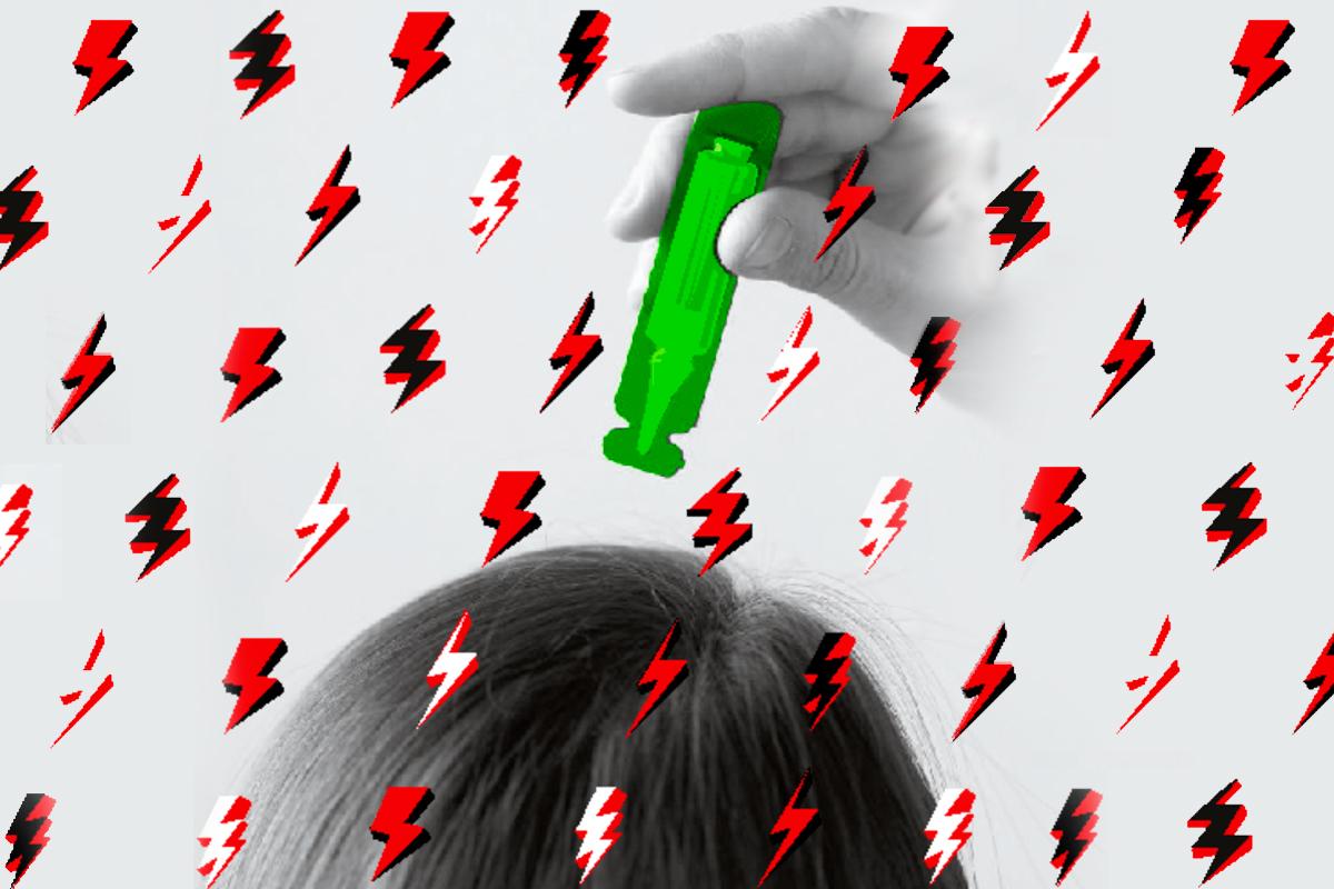 La tricodinia o dolor en el cuero cabelludo se describe como una sensación desagradable de dolor, escozor, tirantez o ardor en el cuero cabelludo.