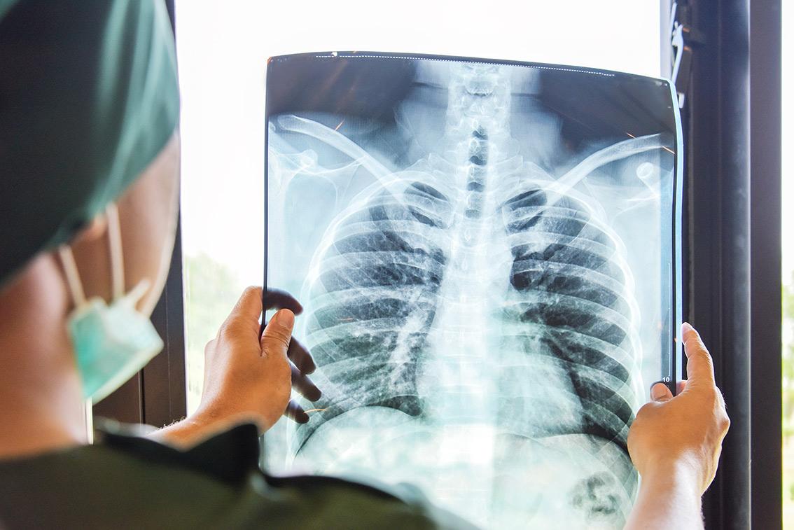 Doctora mirando radiografía