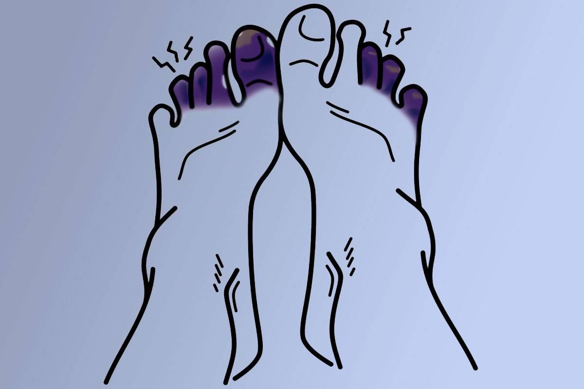 Imagen de unos dedos del pie con necrosis.