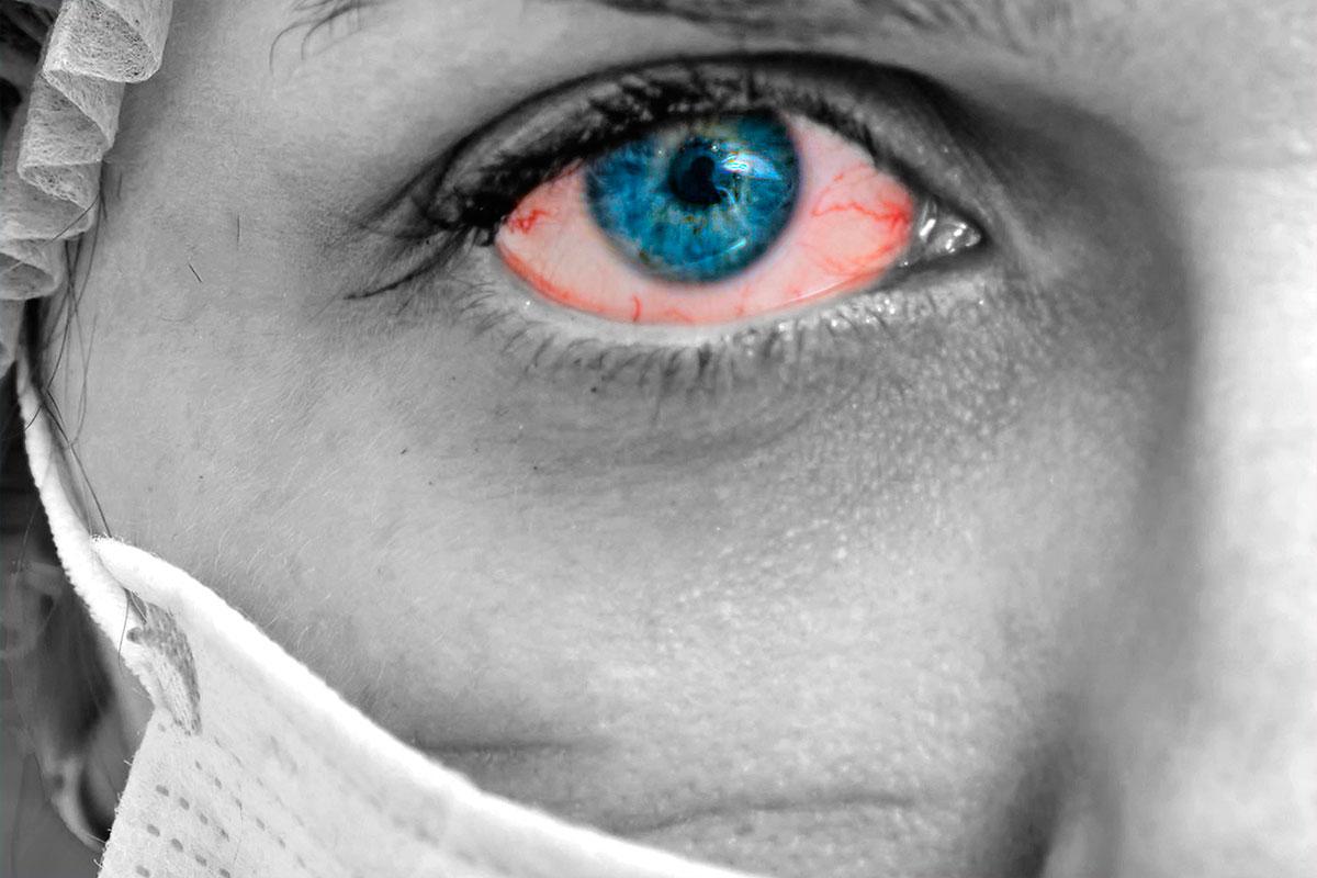 Las medidas para evitar el contagio por coronavirus han propiciado una menor incidencia de conjuntivitis víricas.
