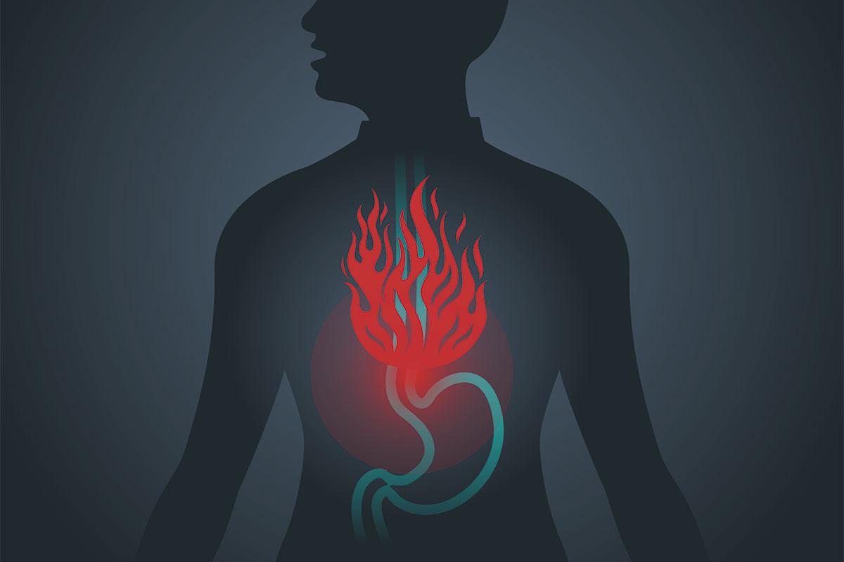 Un 9,8% de la población española ha sufrido una o más veces por semana síntomas típicos de ERGE.