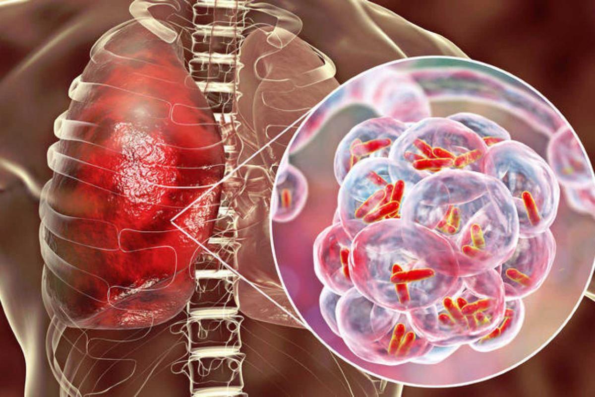 Infección pulmonar de tuberculosis.