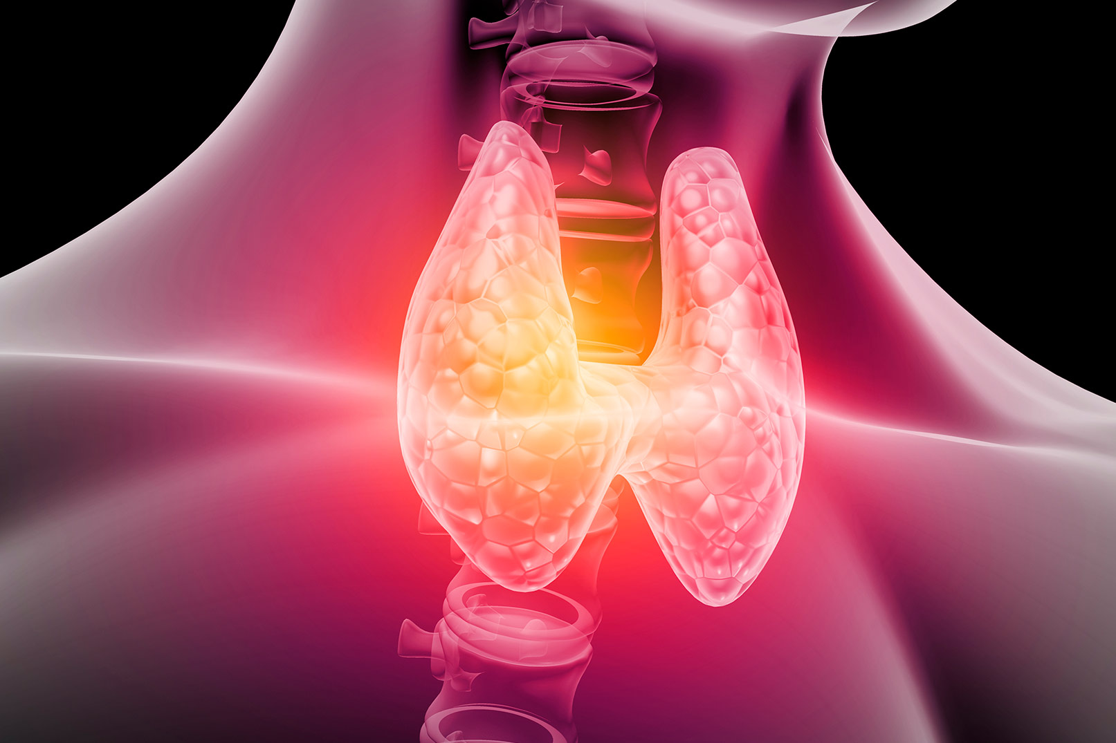El 60% de los enfermos con hipotiroidismo subclínico no ha sido diagnosticado