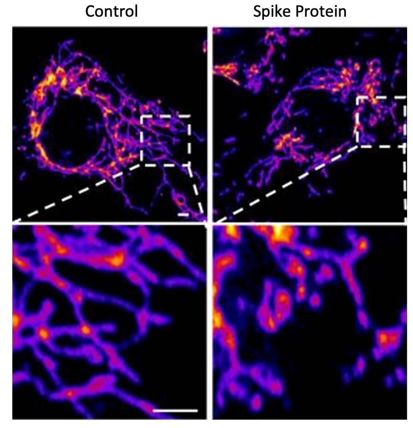 A la izquierda, imágenes de células sanas del endotelio vascular. A la derecha, la exposición a la prote�na S produce un aumento de la fragmentación mitocondrial (Instituto Salk).