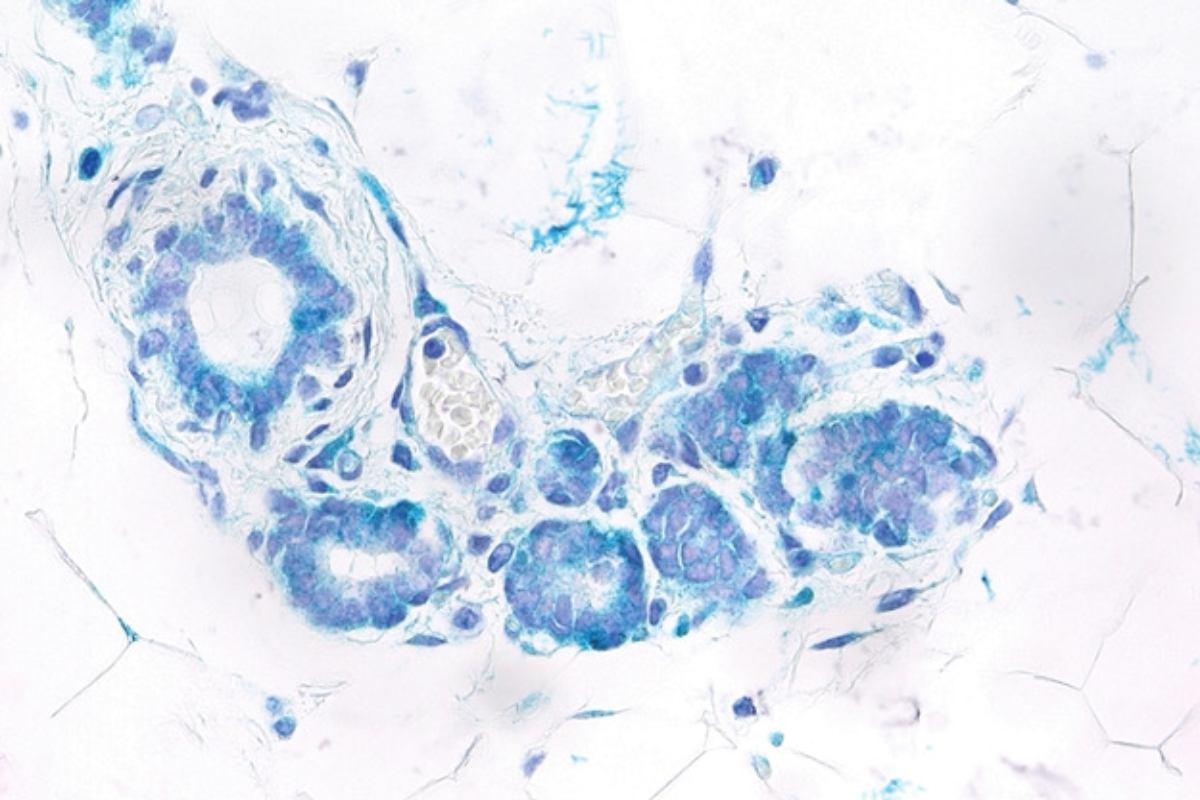 Células epiteliales senescentes (cian) en la glándula mamaria de un ratón con altos niveles de expresión de Rank.