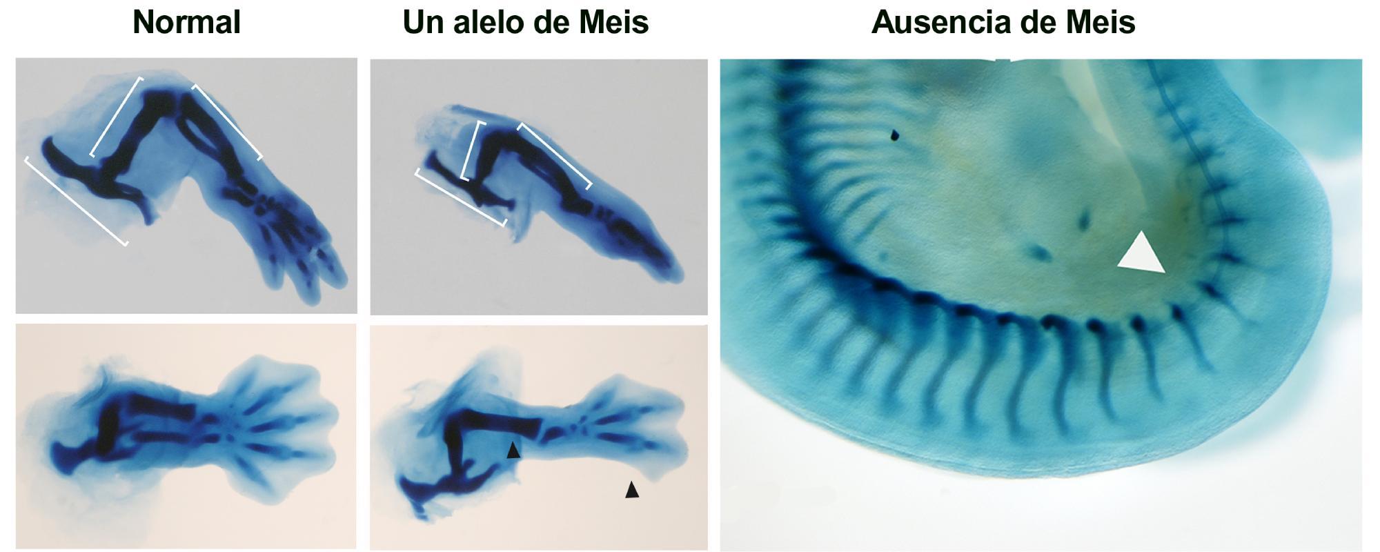 Tinciones esqueléticas de extremidades inferiores en embriones normales, con un alelo o en ausencia total de Meis. Los embriones con una sola copia carecen de peroné y dos dedos posteriores (flechas negras). La ausencia total de Meis resulta en la ausencia de extremidad (flecha blanca).