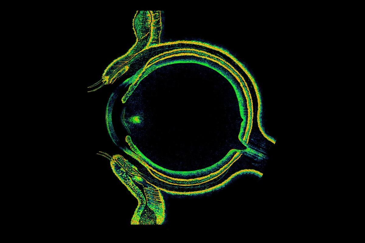 Montaje de OCT que muestra la sección transversal de un ojo humano.