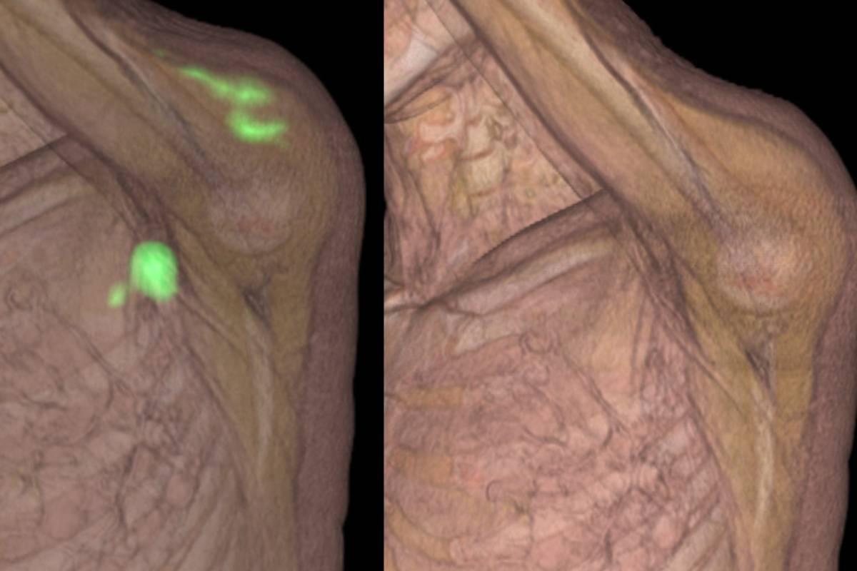 Inflamación local con adenopatías en la axila tras la vacuna de Moderna. fotografía derecha: misma zona dos meses después sin necesidad de tratamiento ni biopsia. (FOTO: Dr. Maldonado)