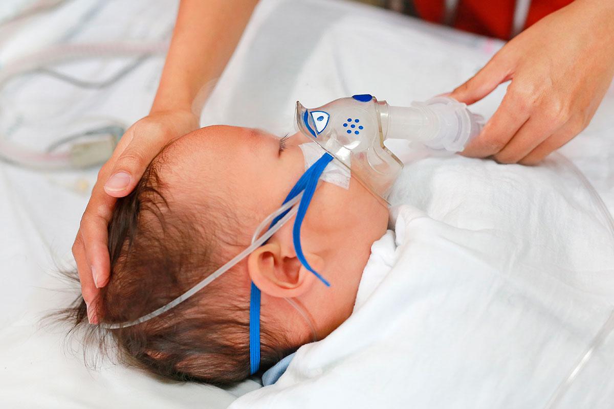El VRS es la primera causa de bronquiolitis y neumonías en bebés menores de un año.