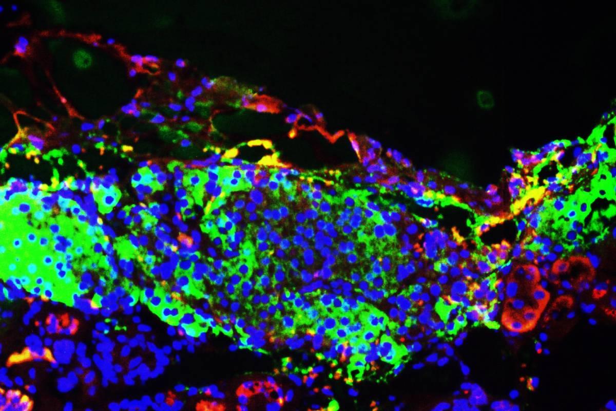 Células beta pancreáticas derivadas de células de pluripotencialidad inducida.